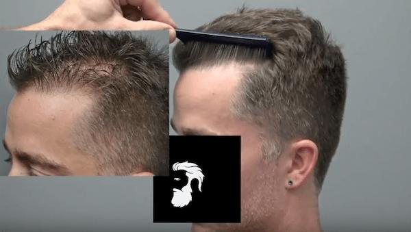 greffe-de-cheveux-avant-apres