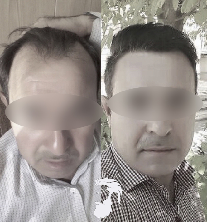 Photos avant-après l'intervention d'un greffe de cheveux par FUE
